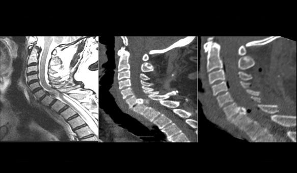 Neurocirugía en Columna-Vertebral