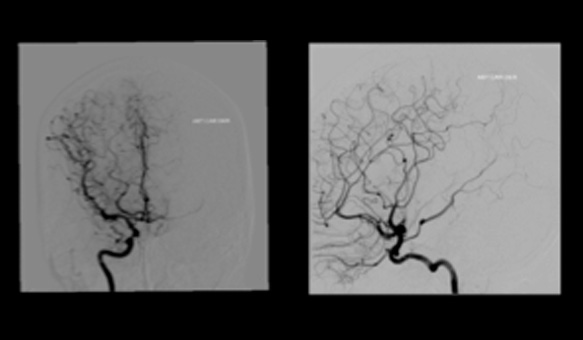 Neurocirugia Cerebro- Vascular