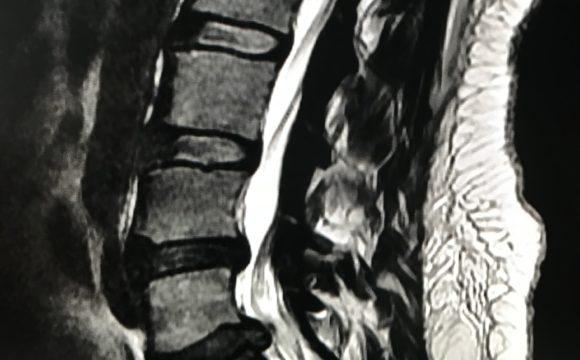 Dolor Lumbar – Un Problema crónico y/o agudo
